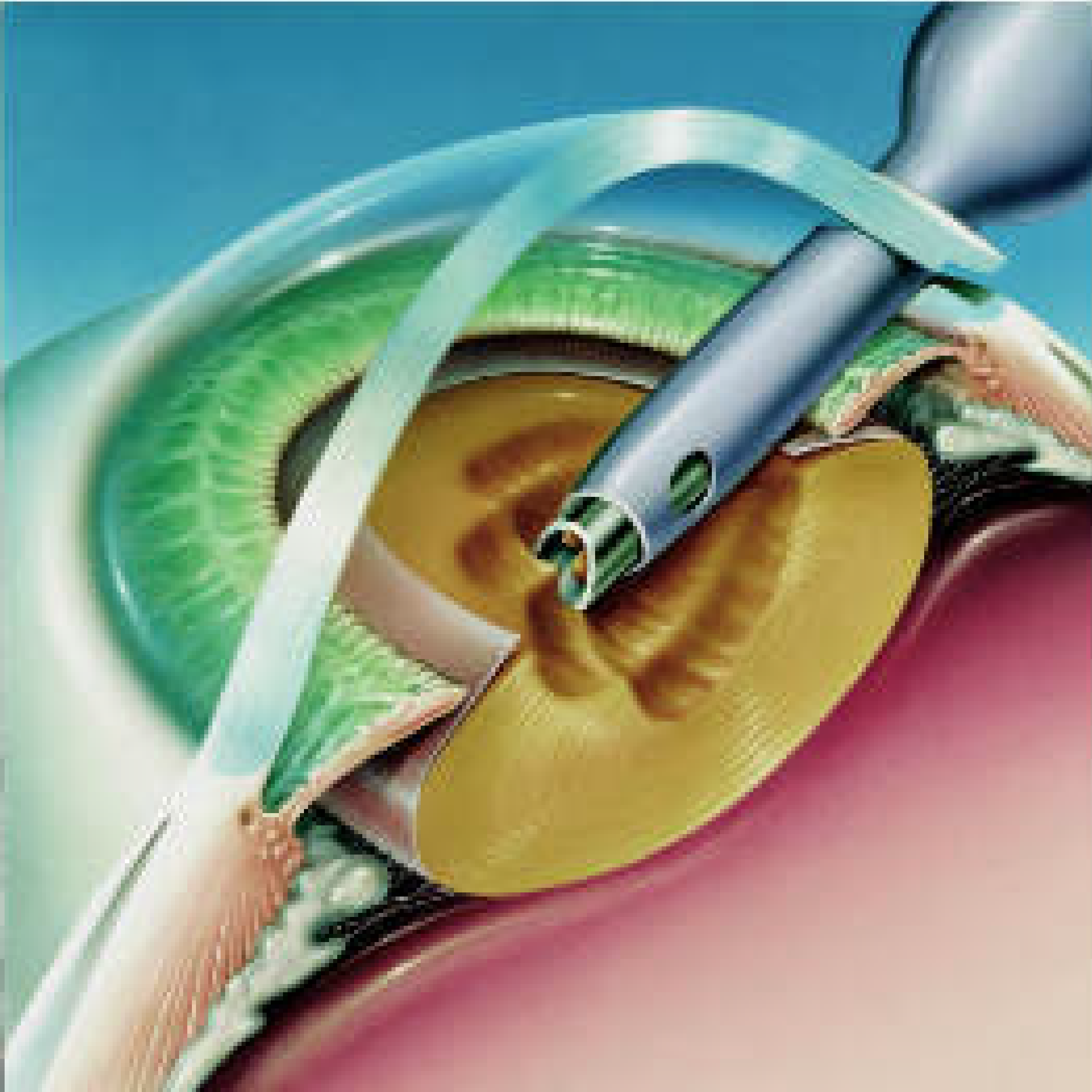 09-Steps-of-surgery1-sm-01