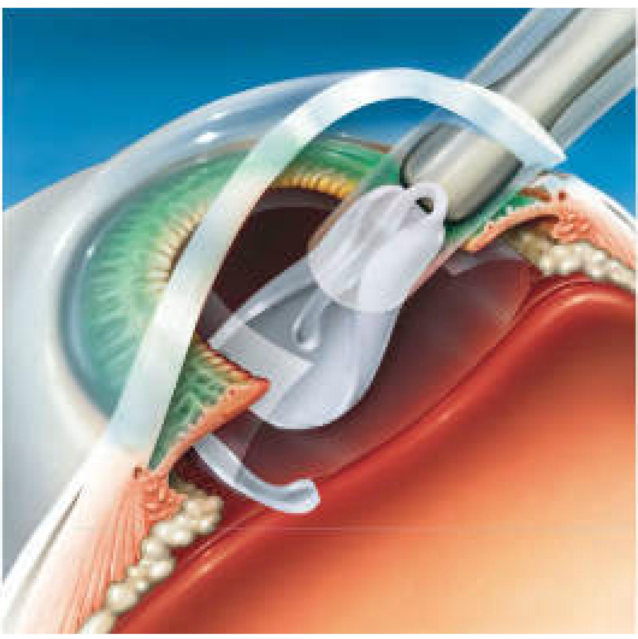 09-Steps-of-surgery1-sm-02